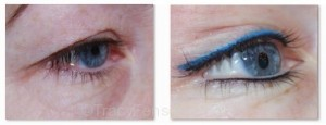 eyes9