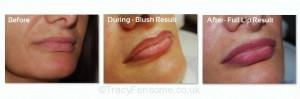 lips19_3