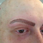What treatments are available for Alopecia?