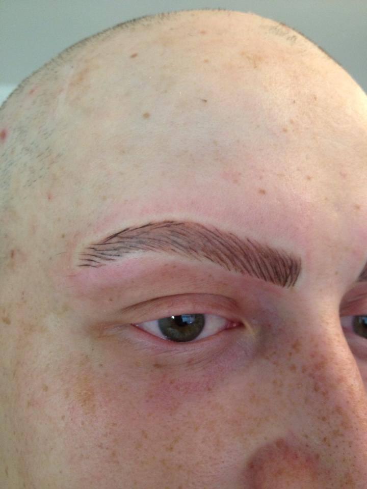 Alopecia Treatments Permanent Makeup Blog