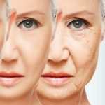 Botox and Fillers Consultation Evening in Bedfordshire