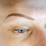 The Perfect Solution for Eye Brow Hair Loss